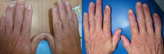 灰指甲治疗前后对比图